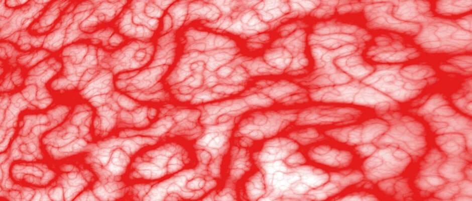مروری بر اختلالات عروق خونی - فارمد